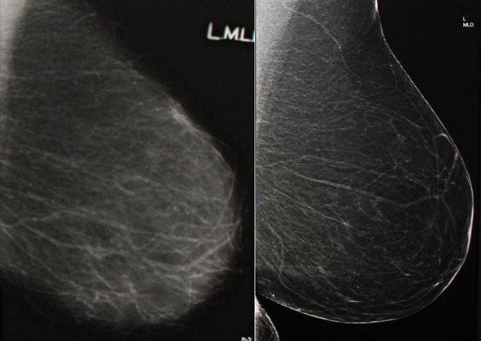 The new digital mammography machine greatly improves image quality. Here, you can see results from the old machine (left) and the new one (right).