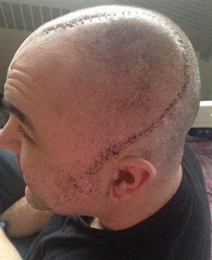 Michael Forry said he had over 50 stitches following an alleged assault at a 7-Eleven convenience store in Kamloops.