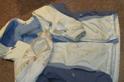 This is the blood-stained jacket belonging to Sarah James of Summerland. The blood and tears in the fabric came from a fight with three hungry coyotes gunning for James's dog.